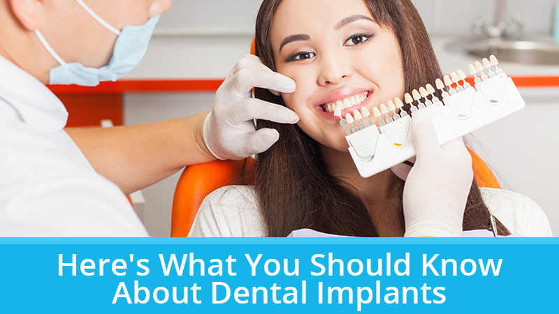 Here's What You Should Know About Dental Implants
