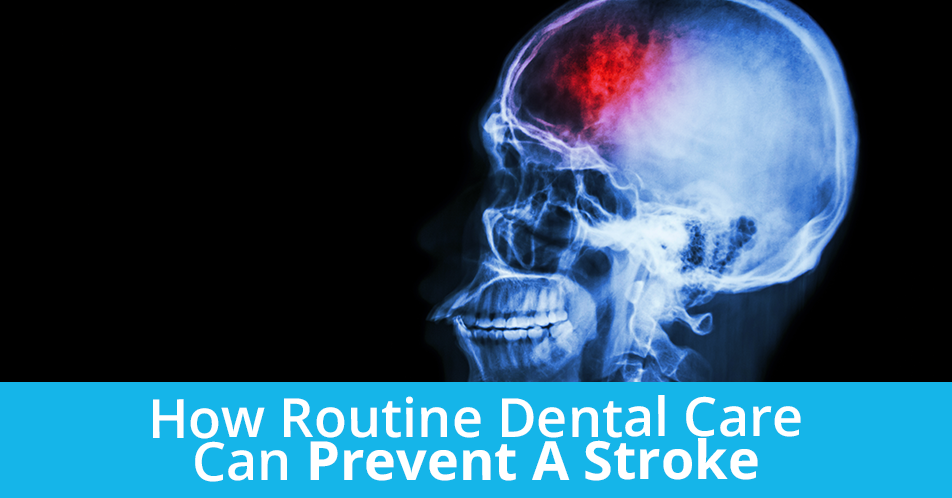 How Routine Dental Care Can Prevent A Stroke